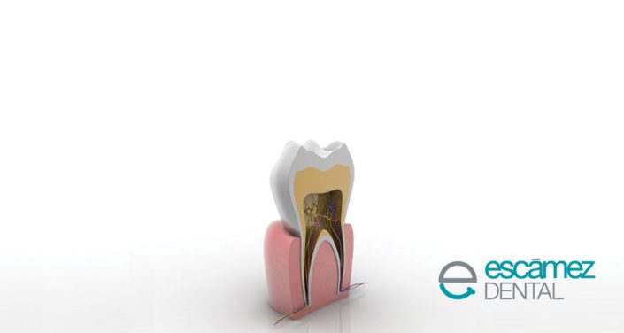 porque se hace una endodoncia