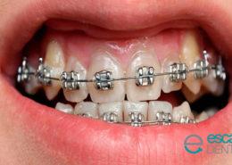 dolor en la ortodoncia brackets