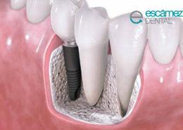 rechazo de Implantes dentales
