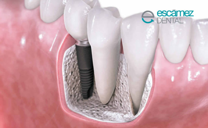 rechazo de Implantes dentales