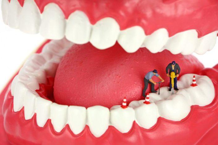 dolor después de una endodoncia