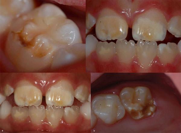 hipoplasia dental, hipoplasiadel esmalte