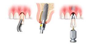 carga implantes dentales