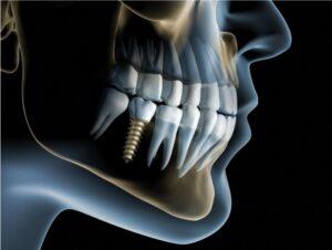 ventajas implantes dentales carga